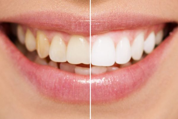 teeth-whitening-01-compressor