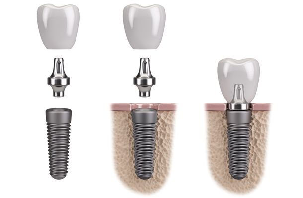 Dental implant with abutment and crown