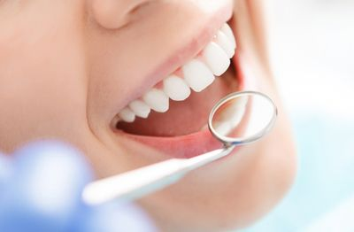 Dental Clean & Scale and examination