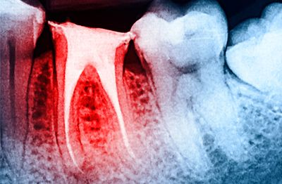 Root canal therapy (Endodontic treatment or surgery)