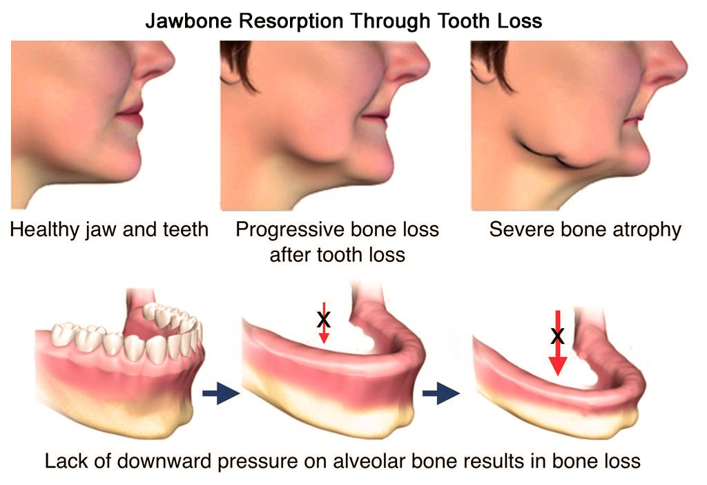 Jawbone resorption through tooth loss