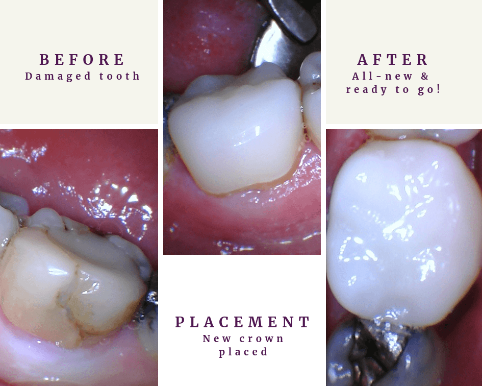 CEREC Dental Crown Before and After